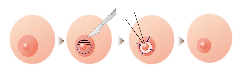 乳首の周りを切って傷跡が目立たなくなる方法