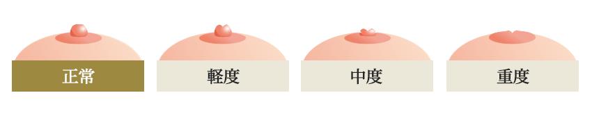 陥没乳頭は軽度・中度・重度の3パターンあります