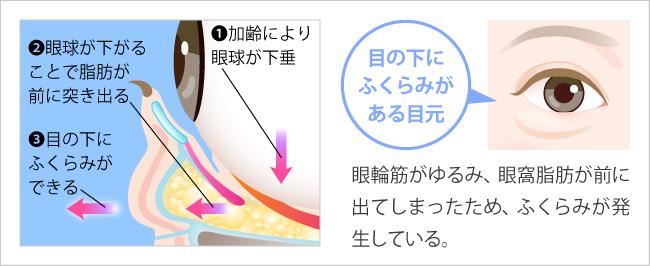 目の下のふくらみが発生する仕組みのイラスト