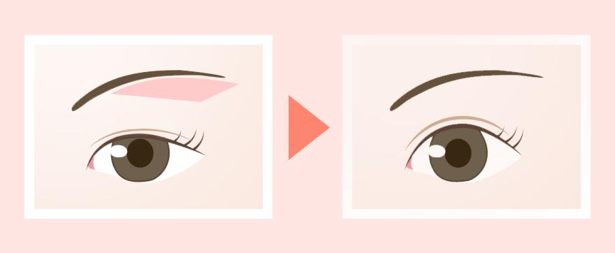 眉毛の下縁に沿って、上まぶたの余った皮膚を切除します。