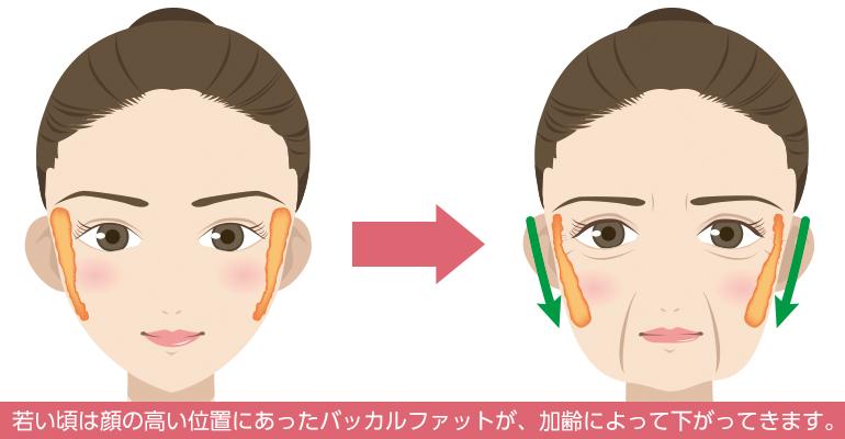 若い頃は顔の高い位置にあったバッカルファットが、加齢によって下がってきます。