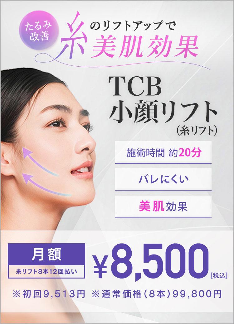 LUPINUSスレッド
