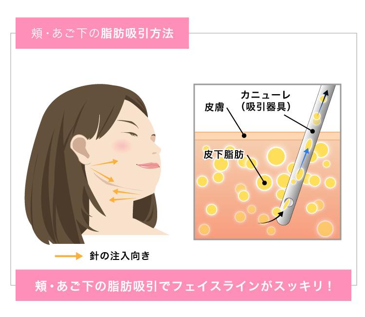 頬・あご下の脂肪吸引方法