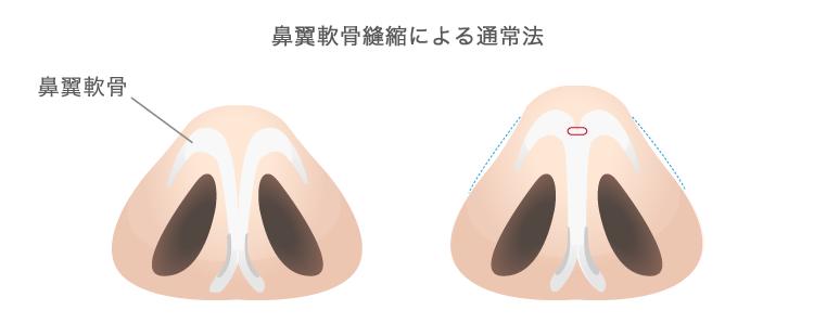 鼻翼軟骨縫縮による通常法
