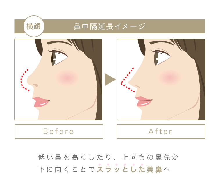 低い鼻を高くしたり、上向きの鼻先が下を向くことでスラッとした美鼻へ
