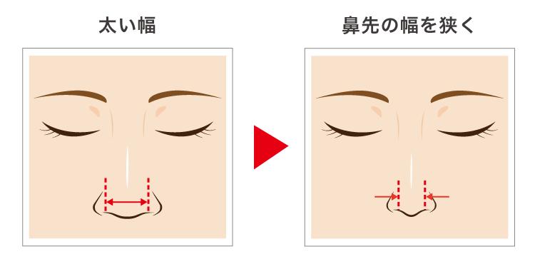 太い鼻先の幅を狭くする