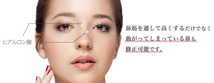 鼻筋を通して高くするだけでなく曲がってしまっている鼻も修正可能です。