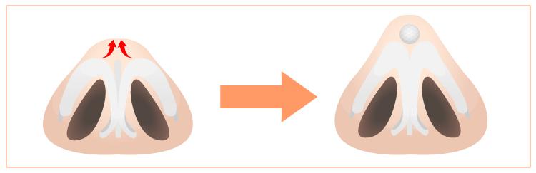 オステオポールによる鼻先の修正