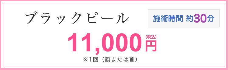 ブラックピール 11,000円(税込)※1回(顔または首) 施術時間30分