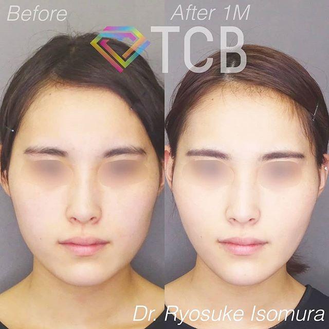 TCB式小顔美肌再生症例写真01