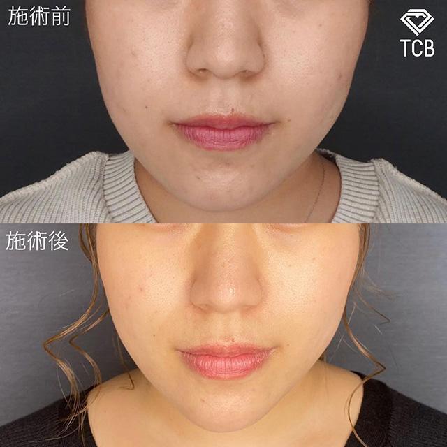 TCB式小顔美肌再生症例写真02