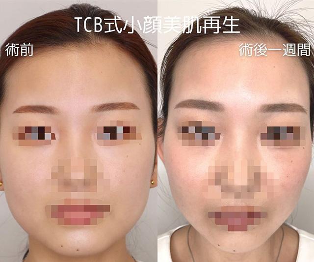 TCB式小顔美肌再生症例写真04