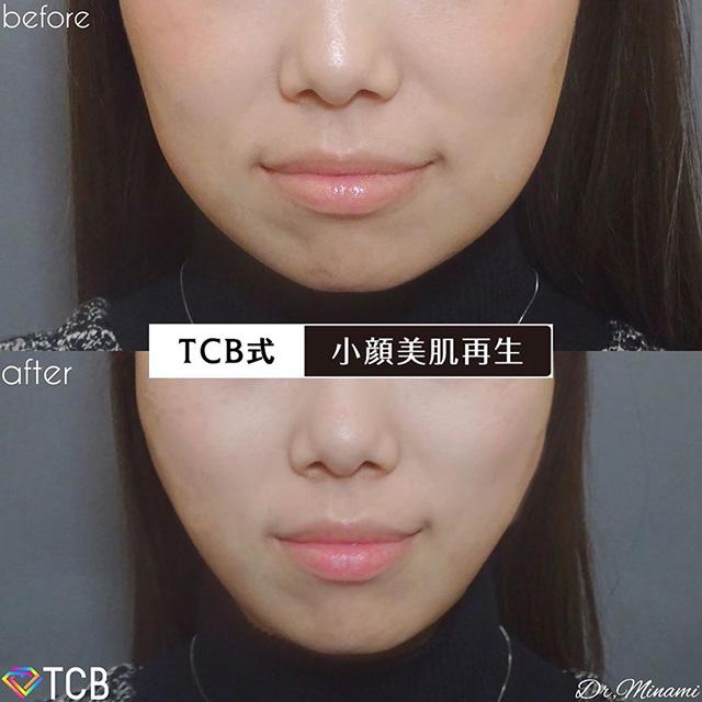 TCB式小顔美肌再生症例写真05