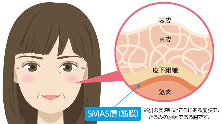 SMAS層(筋膜)