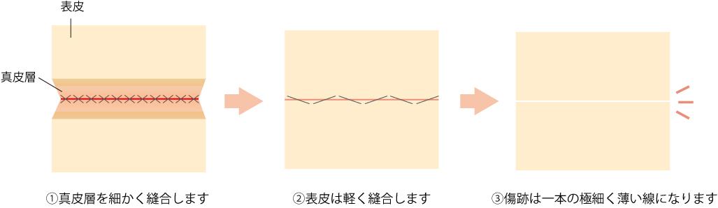 傷跡は初期は赤い線として目立ちますが、徐々に白い線になってなじんでいきます。