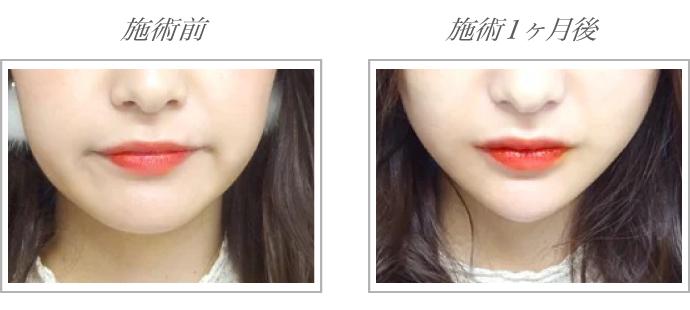 TCB式小顔美肌再生(糸リフト)施術前後比較画像