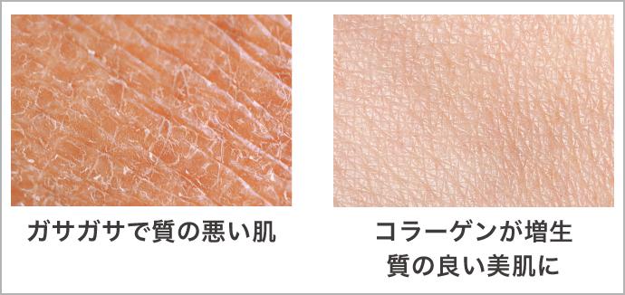 TCB式小顔美肌再生(糸リフト)施術による肌の変化