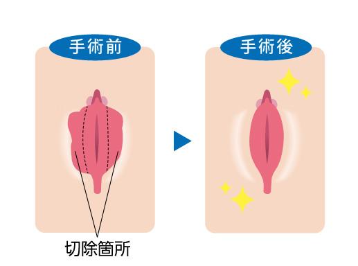 手術前と手術後の比較図