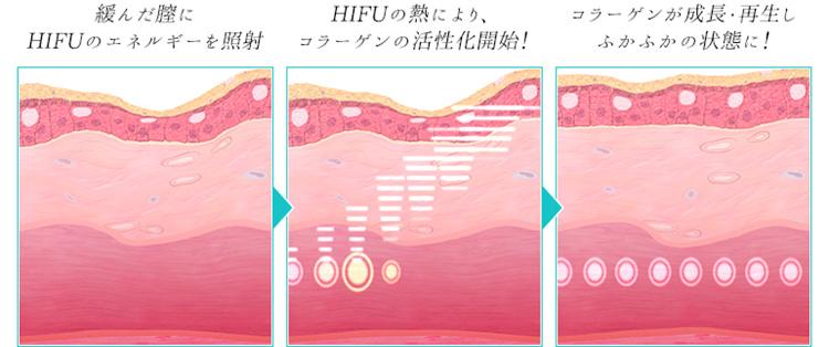 ウルトラヴェラ(HIFU)の熱でコラーゲンを活性化!